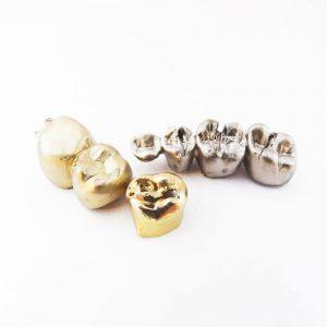 Zahngoldkrone