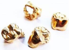 4 Zahngoldkronen