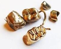5 Zahngoldkronen